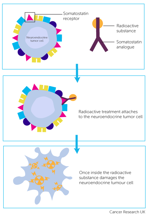 neuroendocrine cancer research)