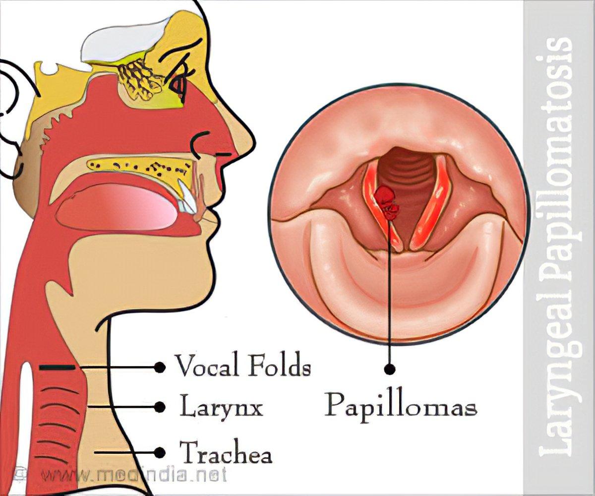 human respiratory papillomatosis paraziti kod dece simptomi