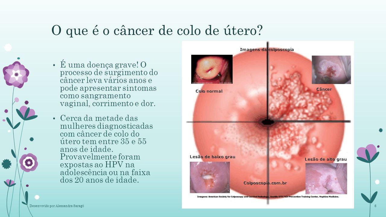 sintomas do cancer de colo de utero hpv nikvorm helicobacter pylori