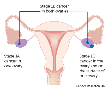 cancer ovarian stage 1