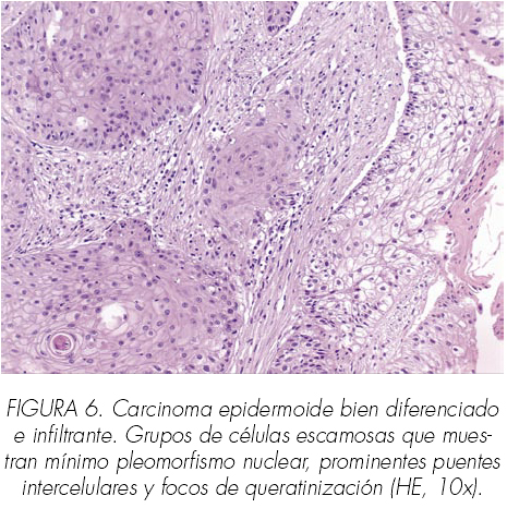 cancer renal de celulas blancas