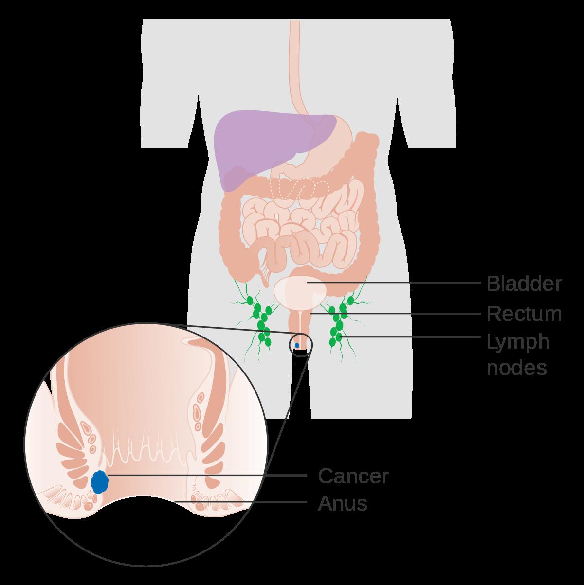 papiloma anorectal)