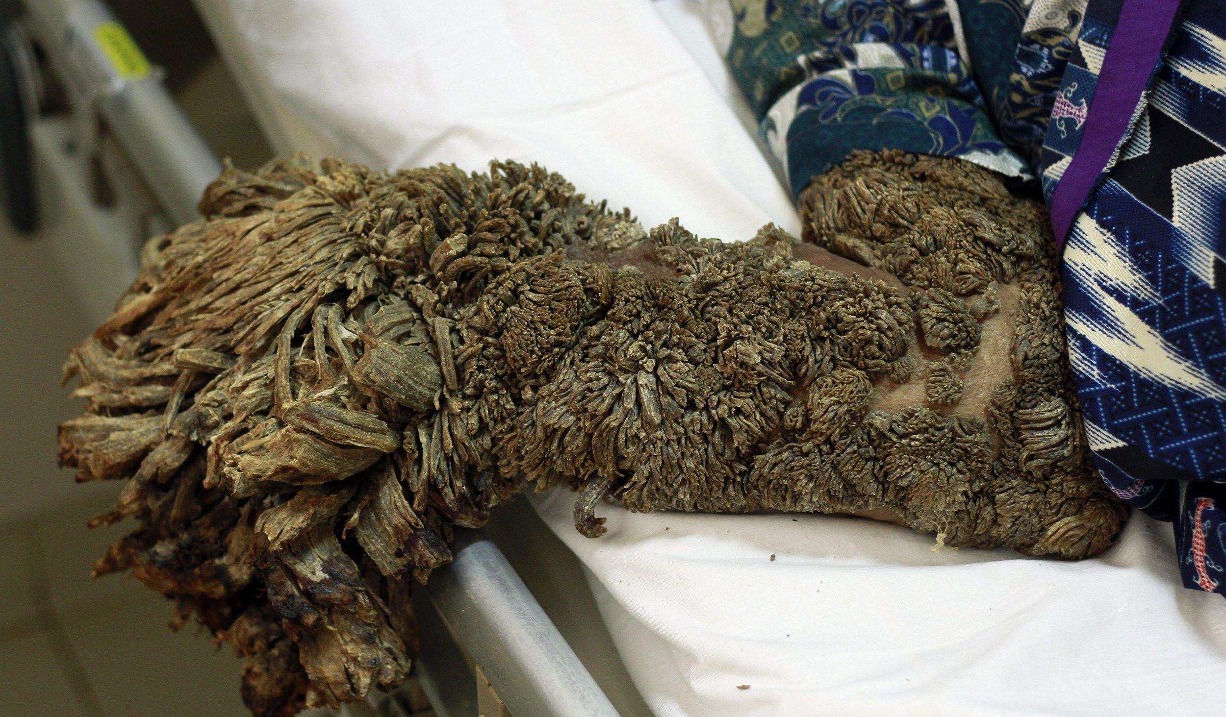 human papillomavirus tree man