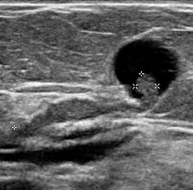 intraductal papilloma mass)