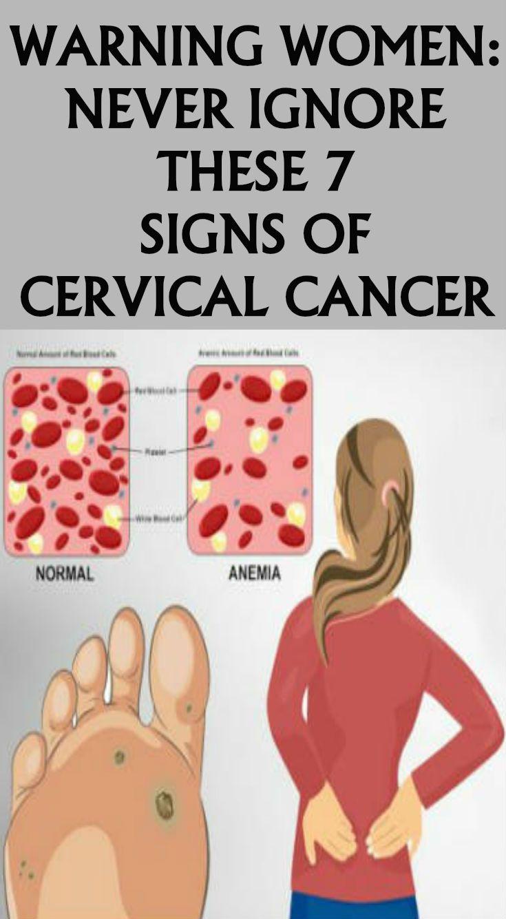 cervical cancer brown discharge)