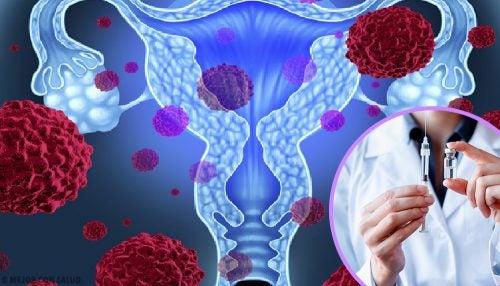 caracteristicas principales del virus del papiloma humano)
