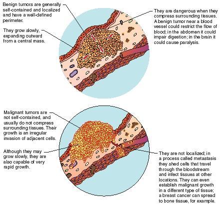 Cancer-fighting gene found - SWI asspub.ro