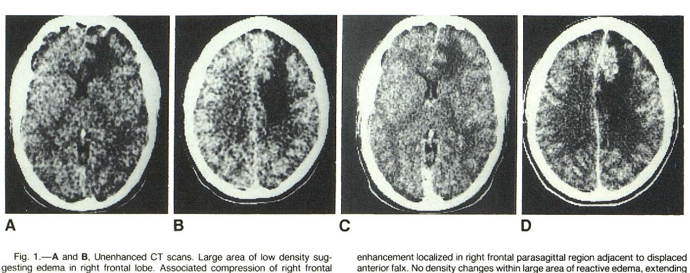 schistosomiasis brain)