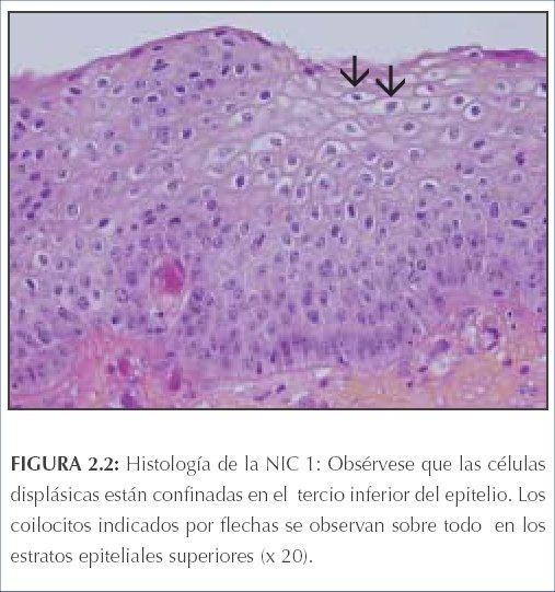 virus de papiloma humano nic 1
