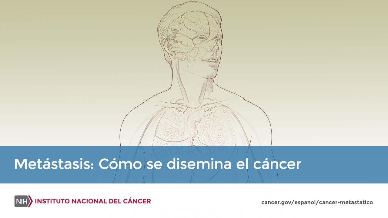Cancer Laringe -