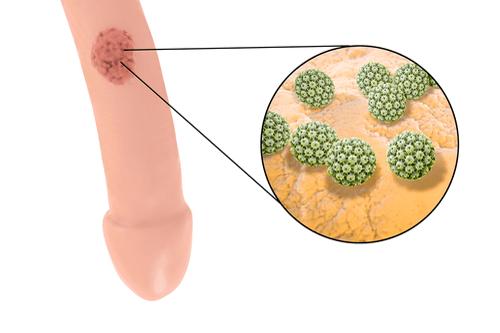hpv herpes genitalis