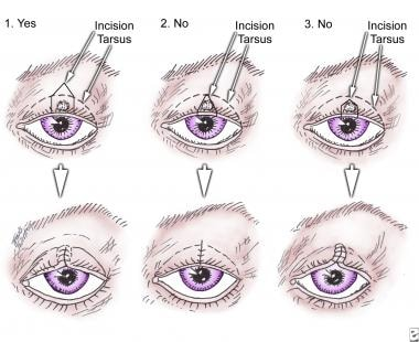 eyelid papilloma removal cpt