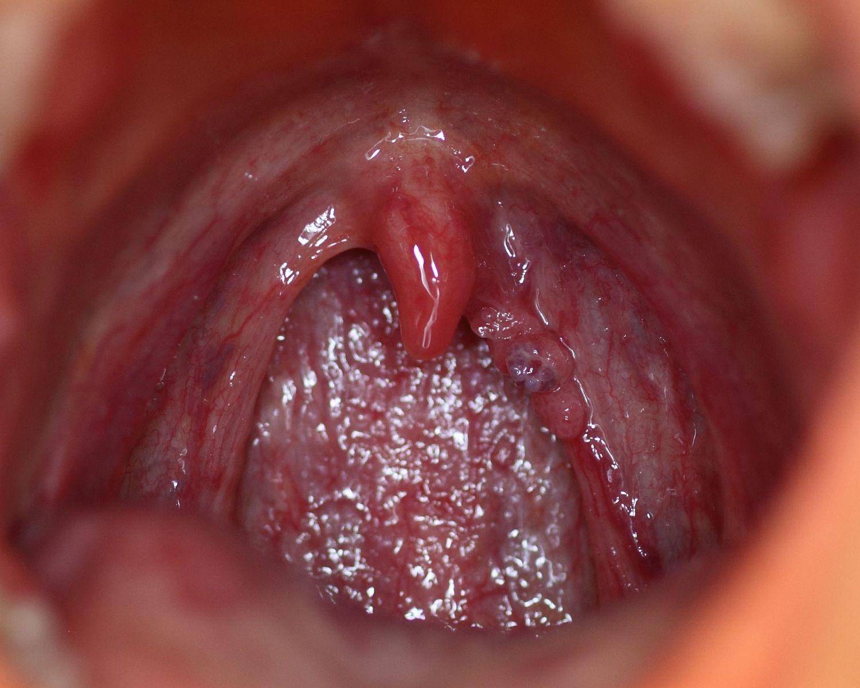 human papillomavirus on tongue