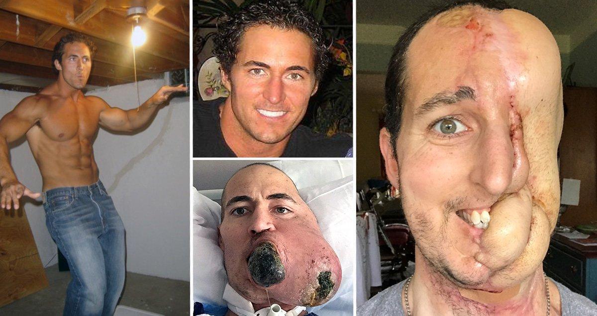 sarcoma cancer forehead)