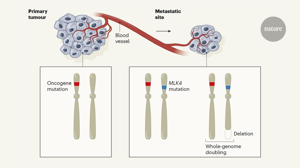 metastatic cancer news