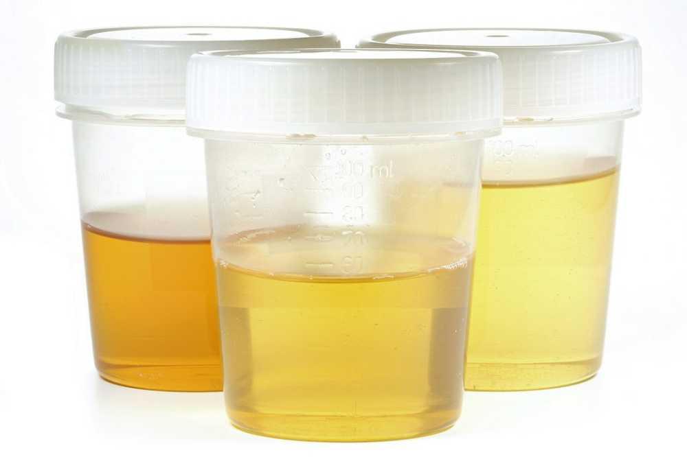viermi urina