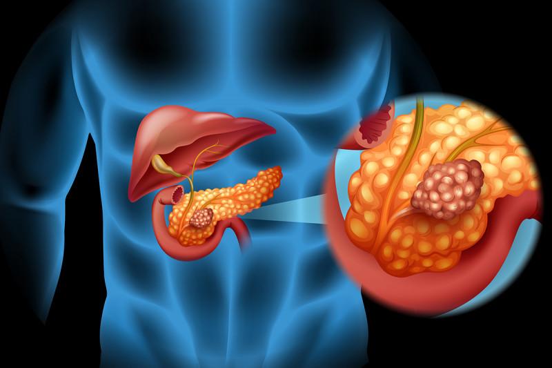 cancer de pancreas foro)