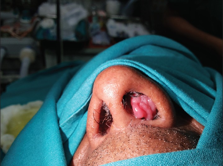 inverting papilloma in nose)