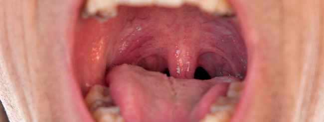 virus papiloma en la boca imagenes