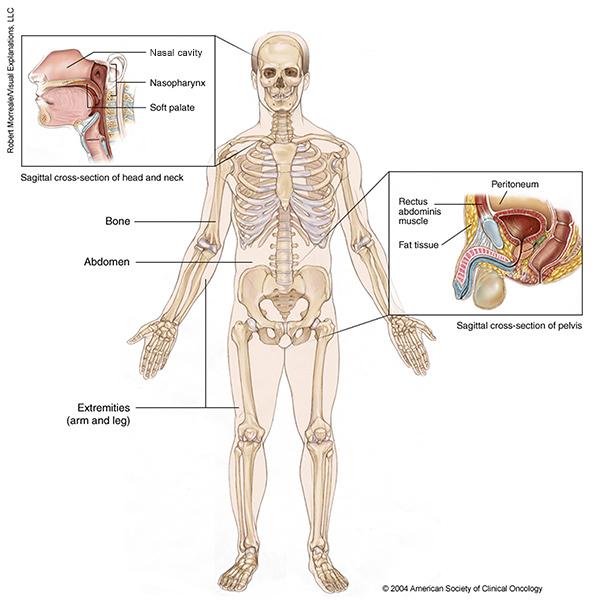 sarcoma cancer on head