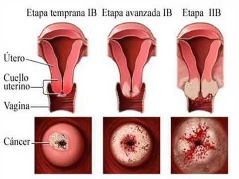 papiloma humano cancer cervico uterino sintomas