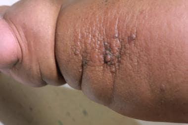 hpv virus test blut tratamento papiloma escamoso esofago