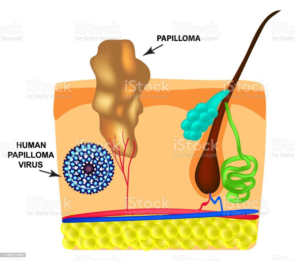 paraziti u stolici slike papiloma virus diagnostico laboratorio