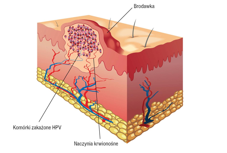 hpv zmiany na szyjce macicy)