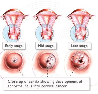 papilloma virus lesione collo utero)