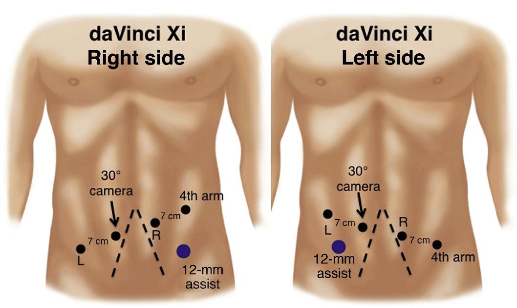 testicular cancer which lymph nodes)