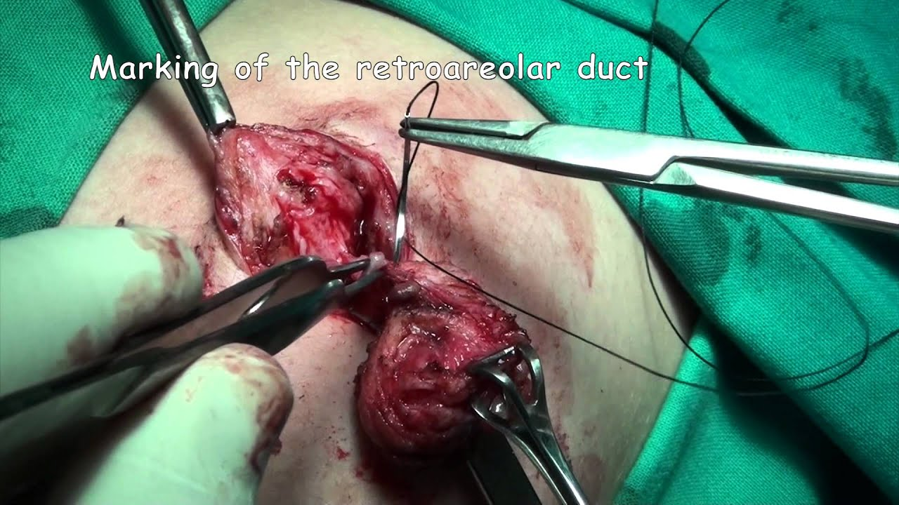 intraductal papilloma surgery necessary)
