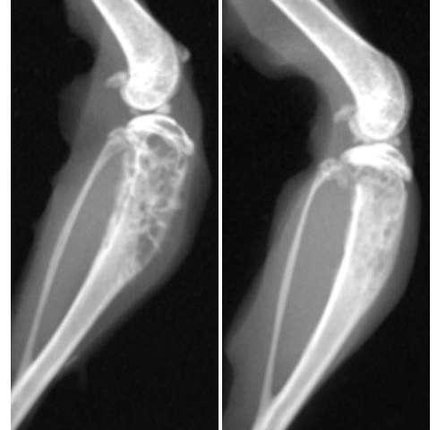metastatic cancer of the bone)