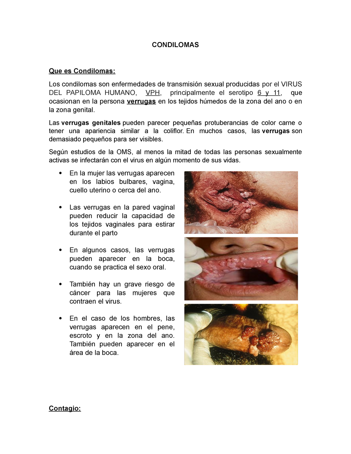 virus del papiloma grave)