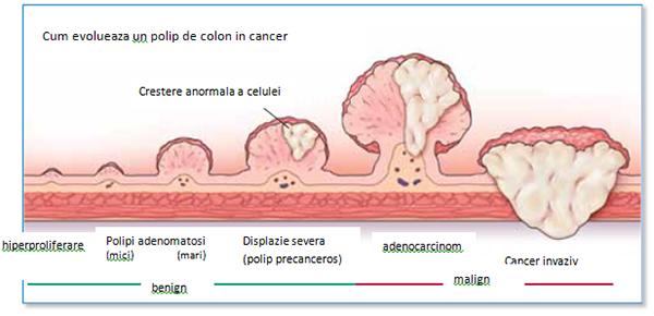 polip la intestinul gros