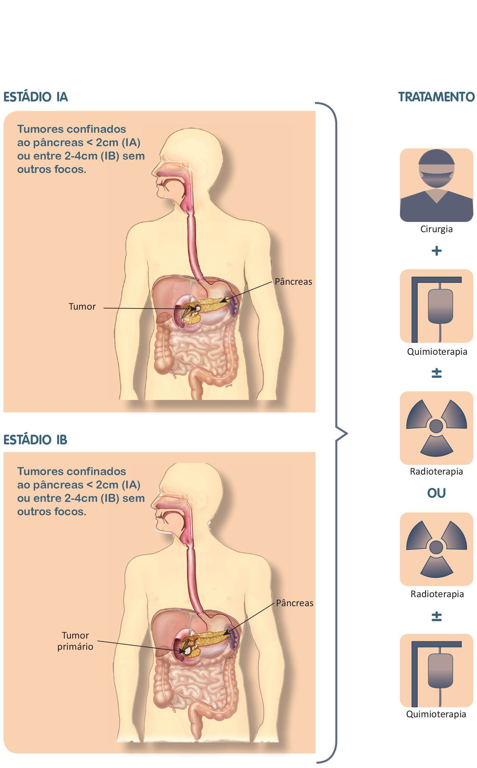 cancer de pancreas que comer