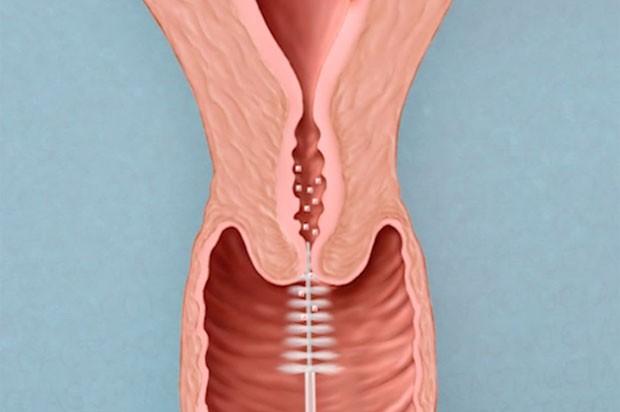 cancer de colon como se detecta