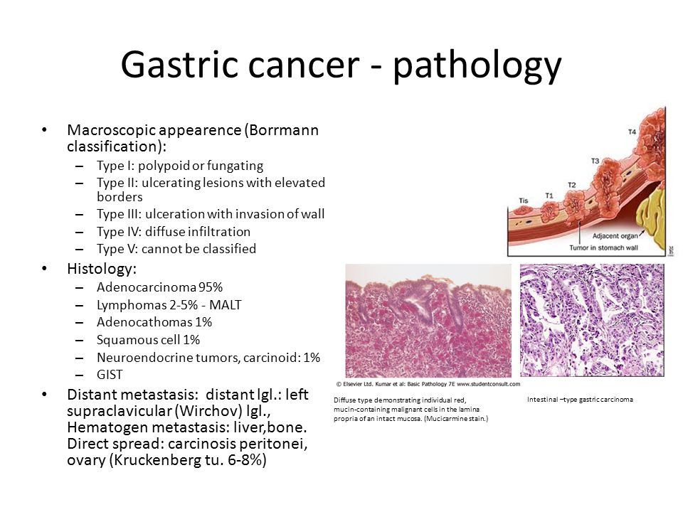 gastric cancer vs gist cancer renal y sindrome paraneoplasico