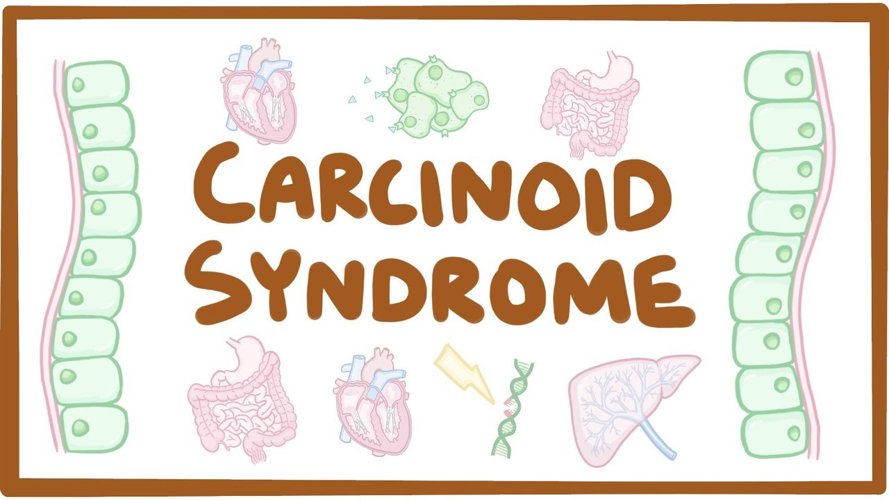neuroendocrine cancer early signs)