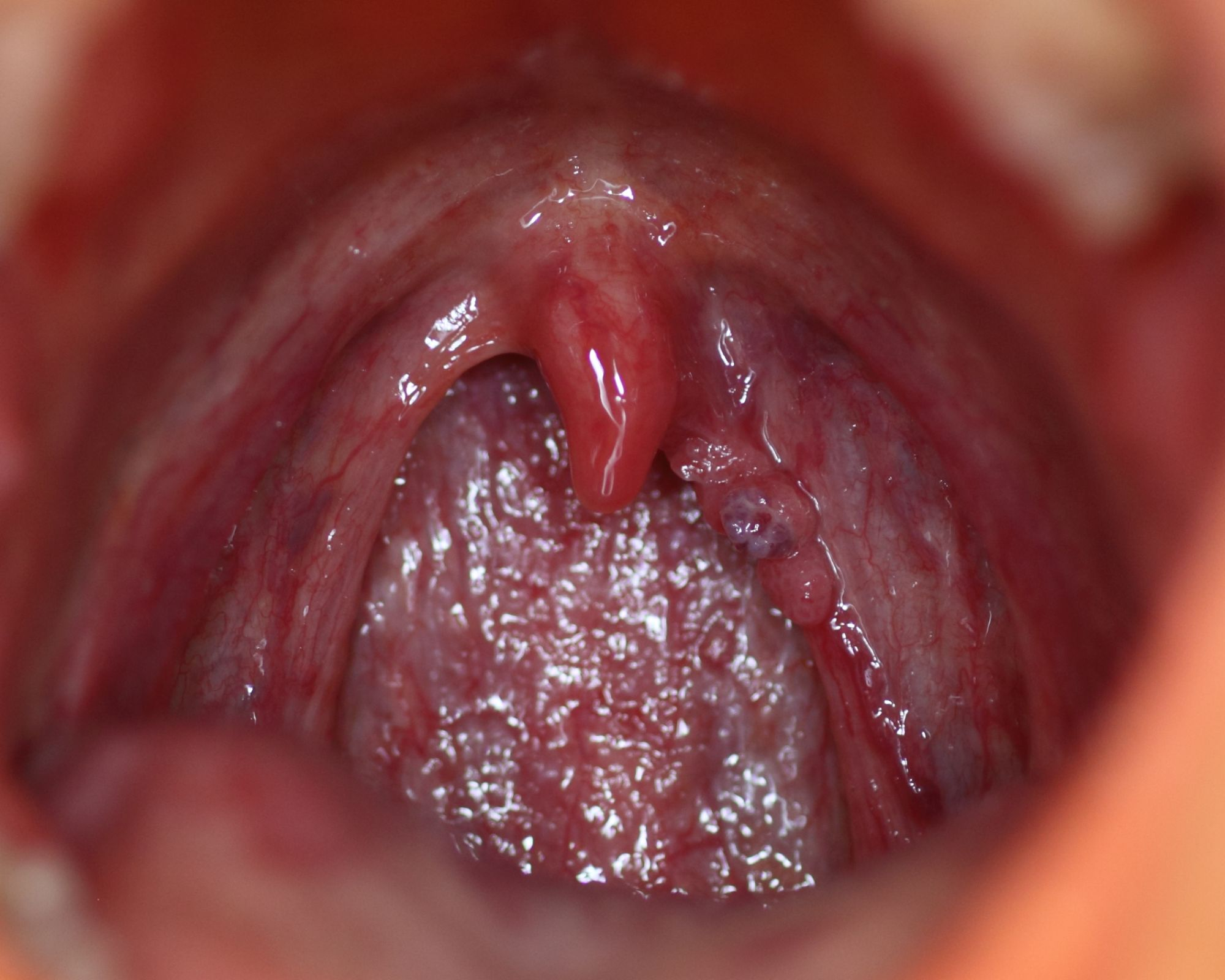 papilloma wart on my uvula)