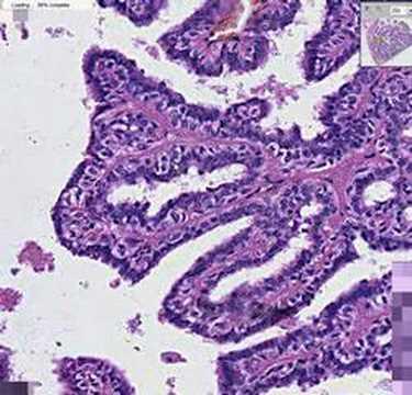intraductal papillomatosis histology