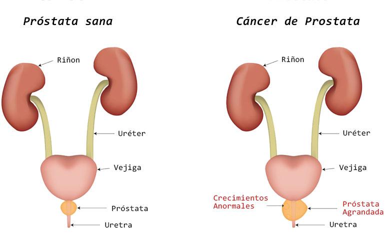 cancer de prostata sintomas y causas)
