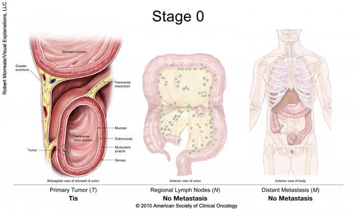 cancer rectal t2)