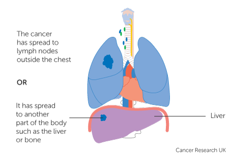hpv neck mass hepatic cancer labs