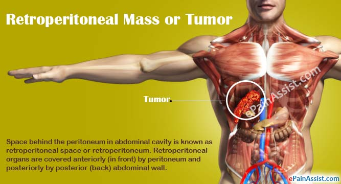 cancer in abdominal muscle)