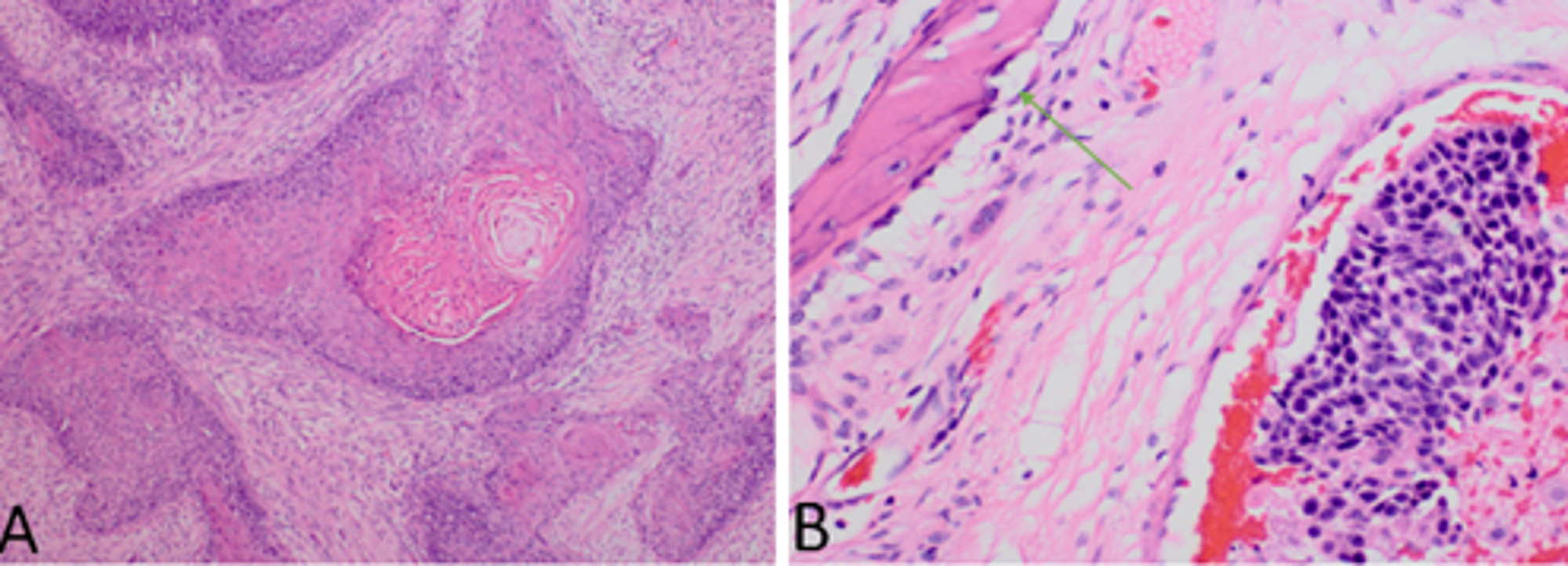 squamous cell carcinoma and papilloma