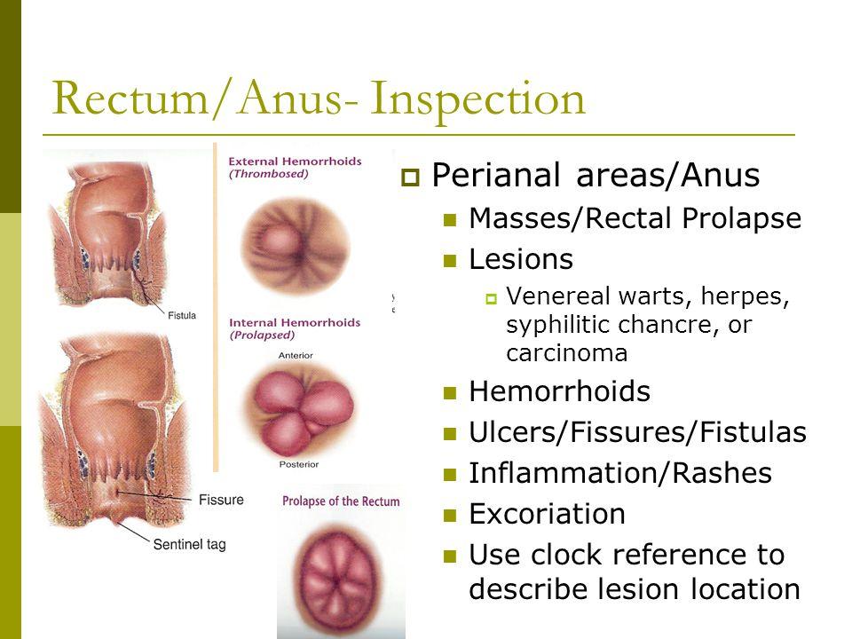 does human papillomavirus cause genital