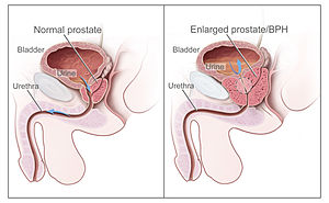 Tomando próstata monural