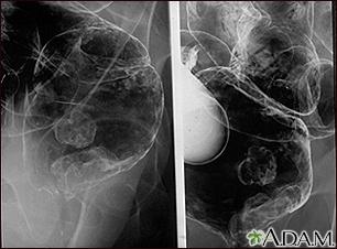 cancer de colon rayos x