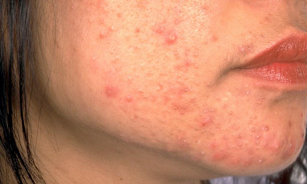 Pimple în anus - Complicații