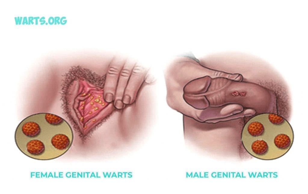 hpv genital warts treatment male)